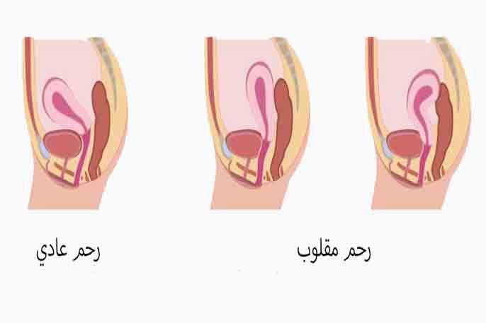 الرحم المقلوب اسباب و الأعراض االجماع و الحمل و الولادة
